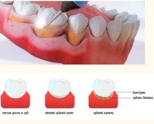 Зубной камень, налет на зубах